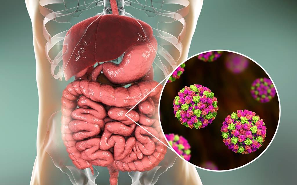norovirus-food-illness